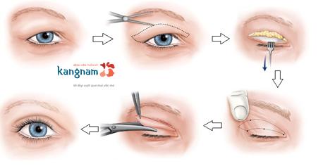 phẫu thuật thẩm mỹ mắt 3