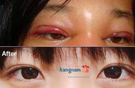 phẫu thuật thẩm mỹ mắt 2