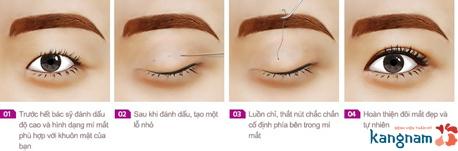 phẫu thuật thẩm mỹ mắt 1