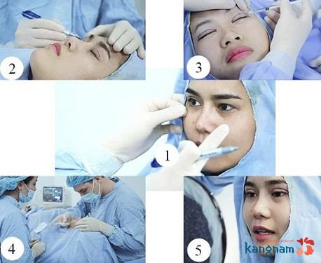 chữa sụp mí mắt có đau không?6