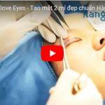 [Video] Bấm mí mắt Dove Eyes – Mắt 2 mí đẹp chuẩn Hàn