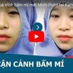 Trực tiếp chia sẻ của chuyên gia về bấm mí mắt Multi Point – Tạo mắt 2 mí vĩnh viễn