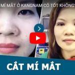 [Video] – Giải đáp một số câu hỏi về cắt mí – Cắt mí ở đâu tốt?