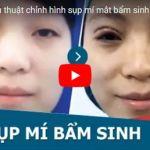 [Video] Cận cảnh kết quả chữa sụp mí mắt bẩm sinh