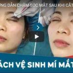 [VIDEO] HƯỚNG DẪN CHĂM SÓC MẮT SAU KHI CẮT MÍ