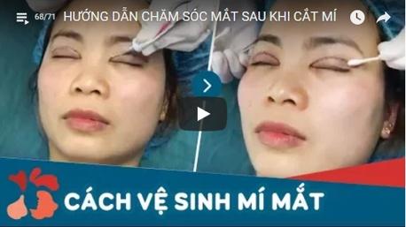 cắt mí mắt có ảnh hưởng sức khỏe không