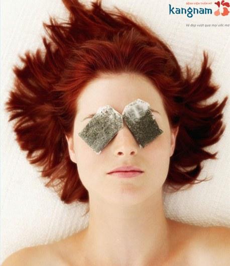 chữa sụp mí mắt 1