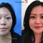 Cắt mí mắt ở đâu đẹp? Tổng hợp review BVTM Kangnam