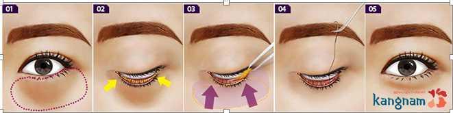 Có nên phẫu thuật bọng mỡ mắt không 8946531