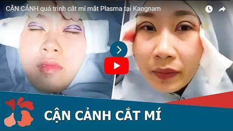 Mách bạn cách tìm địa chỉ cắt mí mắt tin cậy ở Hà Nội