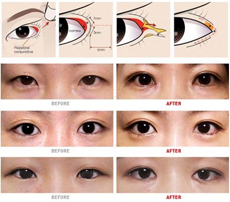 Phẫu thuật mắt to có nguy hiểm không4