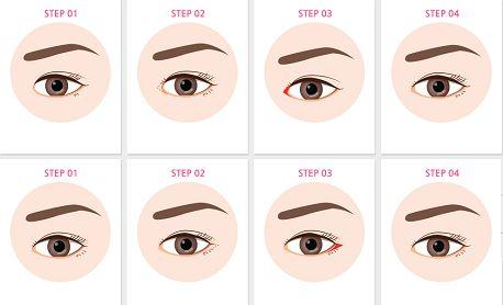 Phẫu thuật mắt to có nguy hiểm không2