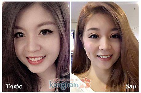 Cắt mí mắt vĩnh viễn Kangnam5