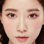 Bấm mí mắt Hàn Quốc có để lại sẹo không? Chuyên gia tư vấn