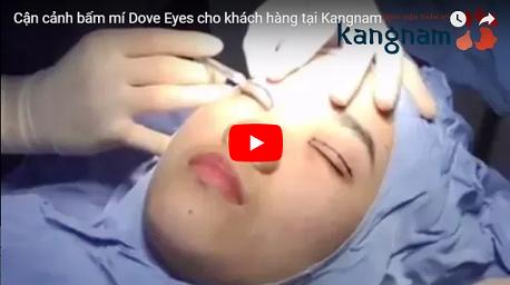 Bấm mí mắt Hàn Quốc có để lại sẹo không