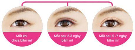 Địa chỉ bấm mí Hàn Quốc Dove Eyes đẹp nhất tại Hà Nội?1