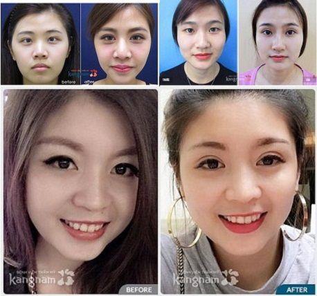 Địa chỉ bấm mí Hàn Quốc Dove Eyes đẹp nhất tại Hà Nội?7