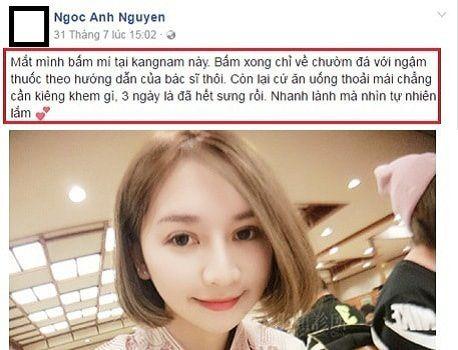 Địa chỉ bấm mí Hàn Quốc Dove Eyes đẹp nhất tại Hà Nội?4