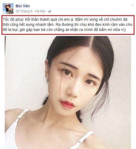 Địa chỉ bấm mí Hàn Quốc Dove Eyes đẹp nhất tại Hà Nội?5