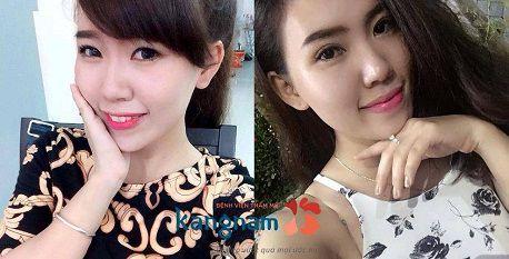 Địa chỉ bấm mí Hàn Quốc Dove Eyes đẹp nhất tại Hà Nội?8