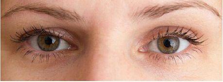 Hiện tượng mắt sụp mí có cách nào khắc phục1