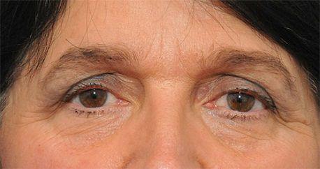 Hiện tượng mắt sụp mí có cách nào khắc phục2