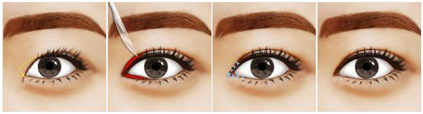 Làm thế nào để có đôi mắt to tròn tự nhiên, trọn đời?3