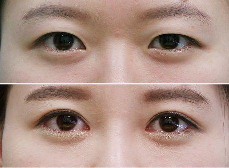 Làm thế nào để có đôi mắt to tròn tự nhiên, trọn đời?4