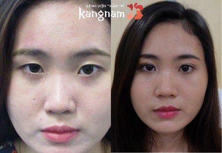 Phải làm sao để khắc phục da chùng, mỡ thừa mí mắt?3