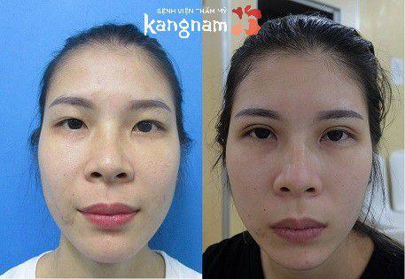 Phải làm sao để khắc phục da chùng, mỡ thừa mí mắt?4