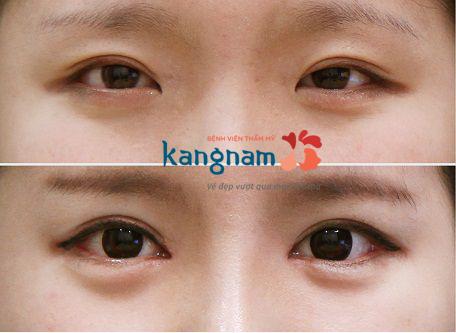Thời gian hồi phục sau khi thẩm mỹ mắt to là bao lâu1