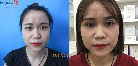 Thời gian hồi phục sau khi thẩm mỹ mắt to là bao lâu6