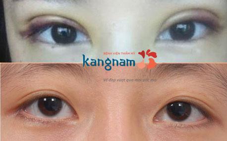 cắt mí mắt bị hỏng 2