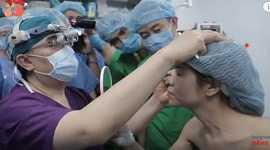 Phẫu thuật cắt mí mắt bao nhiêu tiền? Bảng giá cắt mí mắt tại Kangnam.