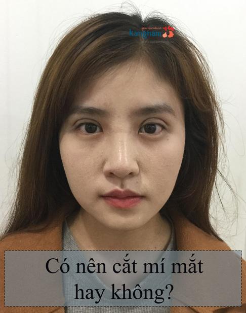 co-nen-cat-mi-mat-hay-khong-1