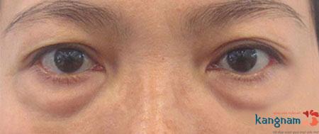 Hình ảnh bọng mắt của một người phụ nữ trung niên