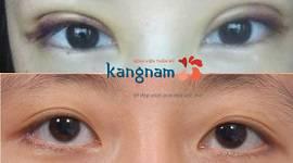 Cắt mí mắt bị hỏng – Nguyên nhân và cách khắc phục hiệu quả nhất