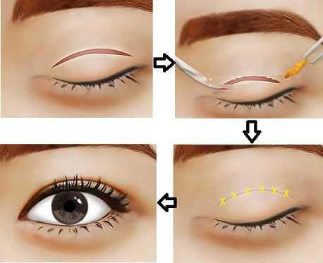 Cách khắc phục mắt lệch mí tại Kangnam