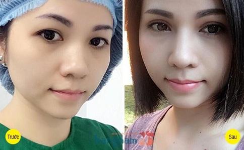 Hình ảnh khách hàng sau cắt mí mắt tại Kangnam
