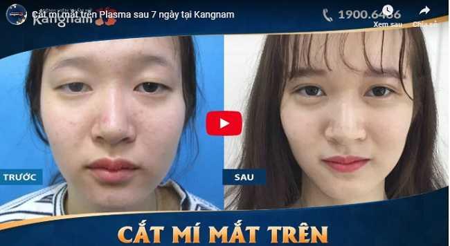 Video cách vệ sinh mắt sau khi cắt mí mắt