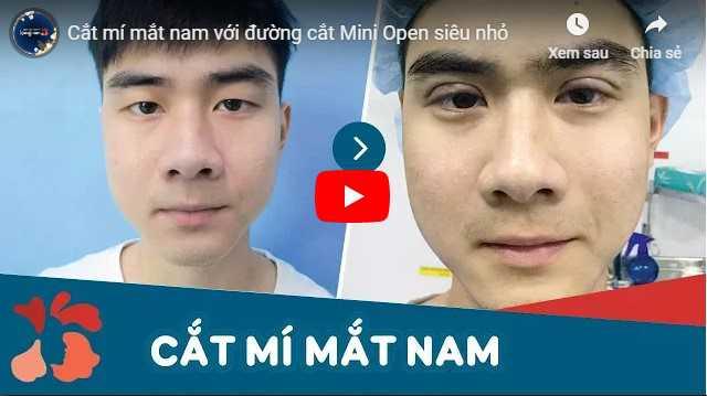 Video cách làm mắt 2 mí rõ tại Kangnam