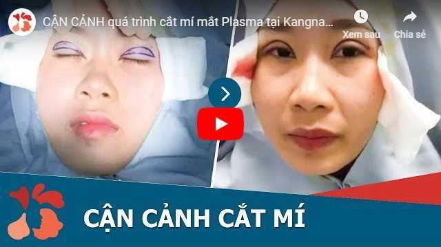 Video cắt mí mắt ở đâu đẹp tphcm